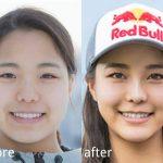 高梨沙羅の顔が変わった!メイク?整形?鼻筋や目の違いを比較
